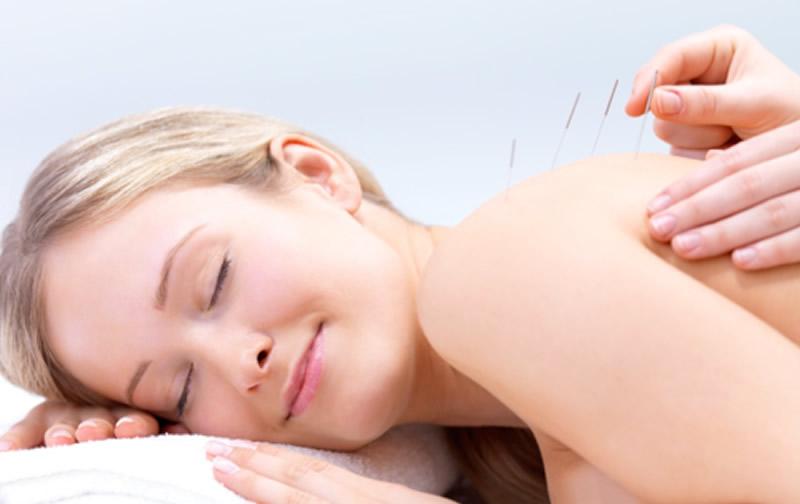 accupuncture1